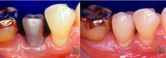 Implantes: Coroas Unitárias em Implantes